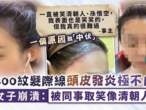 美容失誤︳$3300紋髮際線頭皮發炎極不自然 女子崩潰:被同事取笑像清朝人 - 晴報 - 健康 - 生活健康