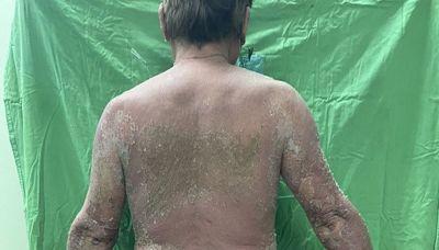 疫苗接種後 澎湖首見全身紅疹脫皮就診