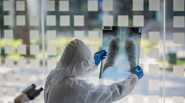 肺纖維化是什麼?為何又稱「菜瓜布肺」?有哪些症狀?新冠肺炎為何會造成肺纖維化?