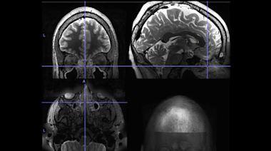 研究表明:慢性鼻竇炎與大腦活動的改變有關
