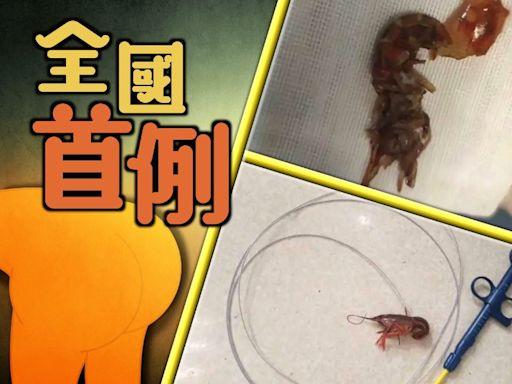 男童活塞小龍蝦進肛門 做腸鏡手術取出