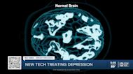 Depression sufferers who can't take medication can use new technology that improves symptoms