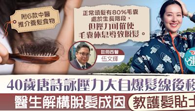 【脫髮危機】40歲唐詩詠壓力大自爆髮線後移 醫生解構脫髮成因教護髮貼士【附養髮食物推介】 - 香港經濟日報 - TOPick - 健康 - 保健美顏