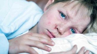 The History of Measles - Where are We Now