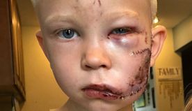 Brave boy, 6, disfigured after stepping in to save little sister from dog attack