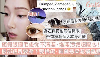 植假眼睫毛唔清潔堆滿污垢!根部結塊要撕下變稀疏,細菌感染蟎蟲增生超可怕! | GirlStyle 女生日常