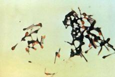 Pathogenic bacteria