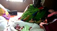 Birth defects soar in South Sudan oil patch