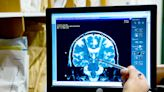 Brave new world: A brain implant zaps negative thoughts away