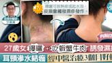 【對抗濕疹】27歲女曝曬吃蝦蟹牛肉濕疹爆發 耳頸滲水結痂經中醫治療3個月好轉【附食療】 - 香港經濟日報 - TOPick - 健康 - 醫生診症室