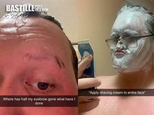 錯將脫毛膏當剃鬚膏塗滿臉 澳洲男搽完一臉「光滑」 | Plastic