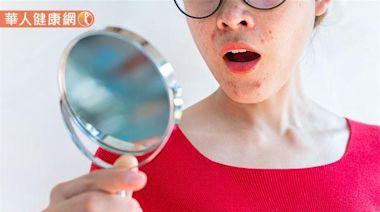 經前小腹悶脹、爆痘正常嗎?經痛無法避免?破解女性月經週期常見5大迷思