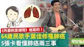 民歌手葉佳修也罹病!肺癌如何早期發現?