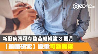 【新冠肺炎】美國研究:新冠病毒可存於陰莖組織長達 8 個月 - ezone.hk - 網絡生活 - 生活情報