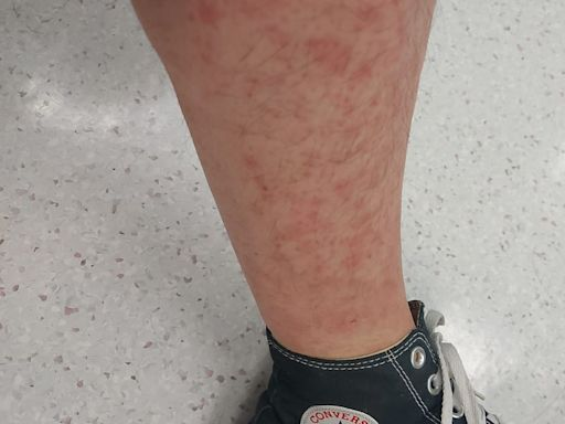 新冠疫苗|46歲男無敏感史 打兩針後全身出疹 專科醫生指較罕有