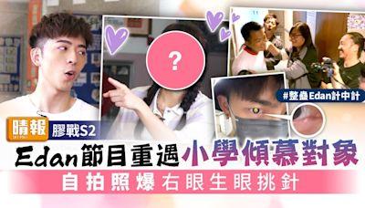膠戰S2丨Edan節目重遇小學傾慕對象 自拍照爆右眼生眼挑針 - 晴報 - 娛樂 - 中港台