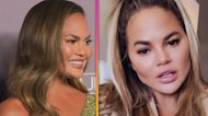Chrissy Teigen Shows Off Facial Cosmetic Surgery Results