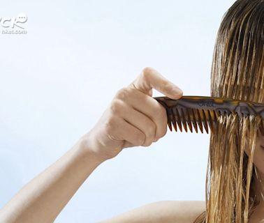 【頭髮護理】頭皮失衡敏感掉皮屑嚴重致脫髮 天然成分產品可減低敏感機會 - 香港經濟日報 - TOPick - 休閒消費