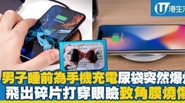 男子睡前為手機充電尿袋突爆炸 飛出碎片打穿眼瞼致角膜燒傷   港生活 - 尋找香港好去處