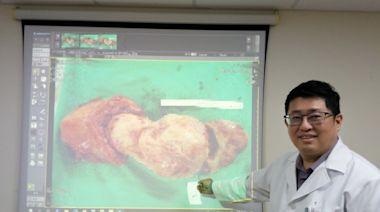 婦人徒步進香險暈倒 送醫發現20公分肌瘤切子宮保命 - 即時新聞 - 自由健康網