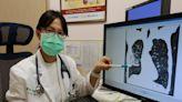 老菸槍疫情期間發燒急送醫 慢性阻塞性肺病發作