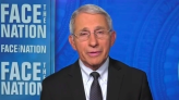 """Transcript: Dr. Anthony Fauci on """"Face the Nation"""""""