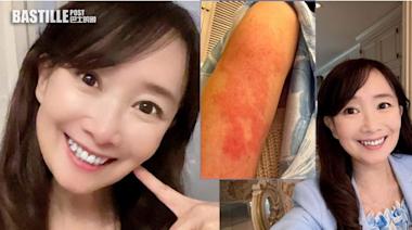 陳美齡分享打完第二針手臂照 「又紅又痕」網民急勸去睇醫生 | 娛圈事