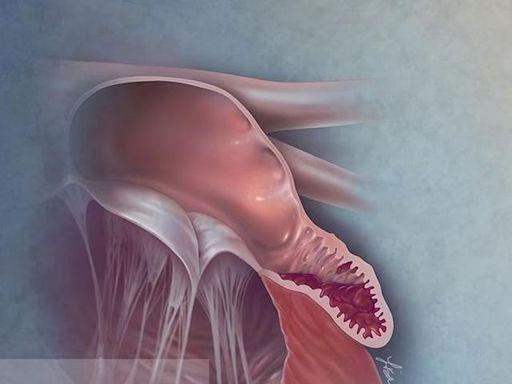 微創主動脈瓣膜手術,瓣膜心臟病患者的福音