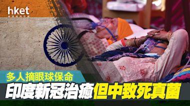 【印度疫情】新冠治癒但中致死真菌 多人摘眼球保命 - 香港經濟日報 - 即時新聞頻道 - 國際形勢 - 環球社會熱點
