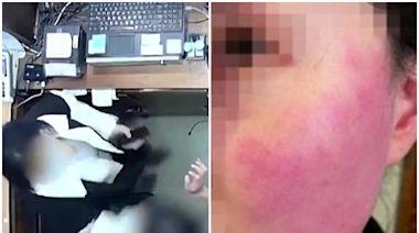 女店員遭比利時大使陸妻「掌摑、拍後腦」 夫控訴:被打到耳鳴!