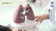 氣喘治療新進展!生物製劑:嚴重性氣喘的標靶治療