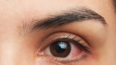 If Your Eye Does This, You May Have COVID, Says Study