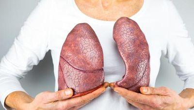 肺結節的「真兇」找到了,除卻吸菸,這3種氣體莫忽視