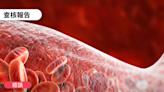 【錯誤】網傳「德國著名科學家 Prof Sucharit Bhakdi 教授 (German) 解釋...建議不要打第二針,因為mRNA疫苗會讓淋巴細胞攻擊血管壁...」?