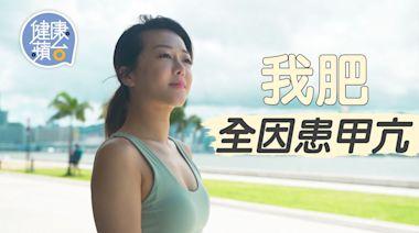 甲狀腺亢進 25歲女生疑壓力大患甲亢 自覺肥腫難分失自信裸辭學瑜伽抗病   蘋果日報