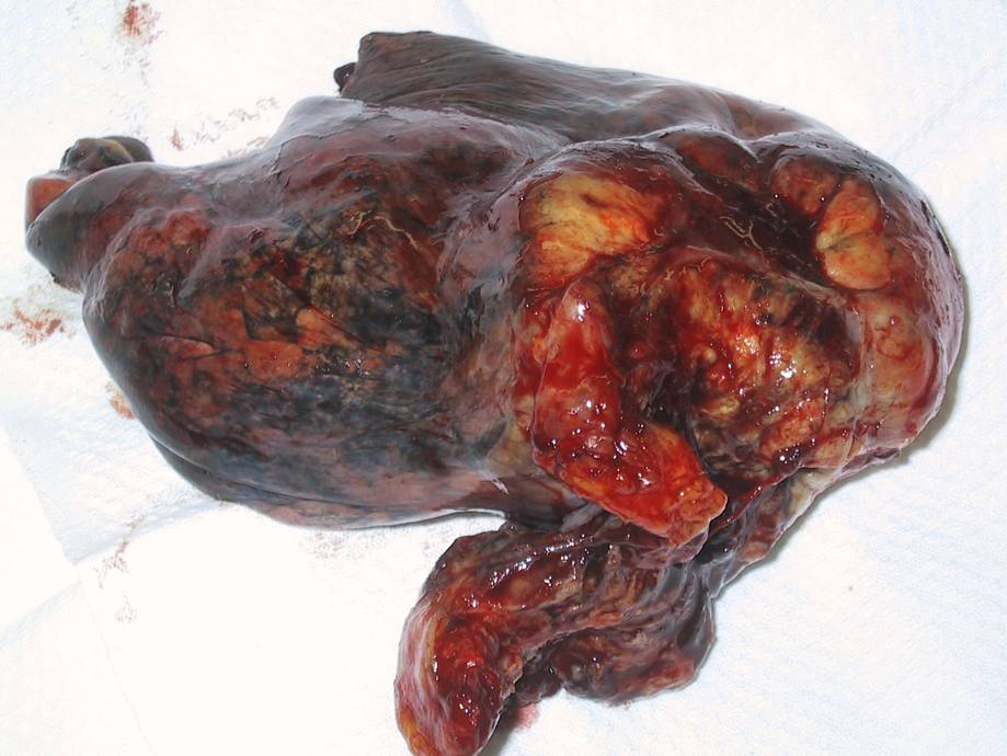 stage-4-lung-cancer-photo