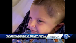 Boy in coma after lawn mower accident awake, eating