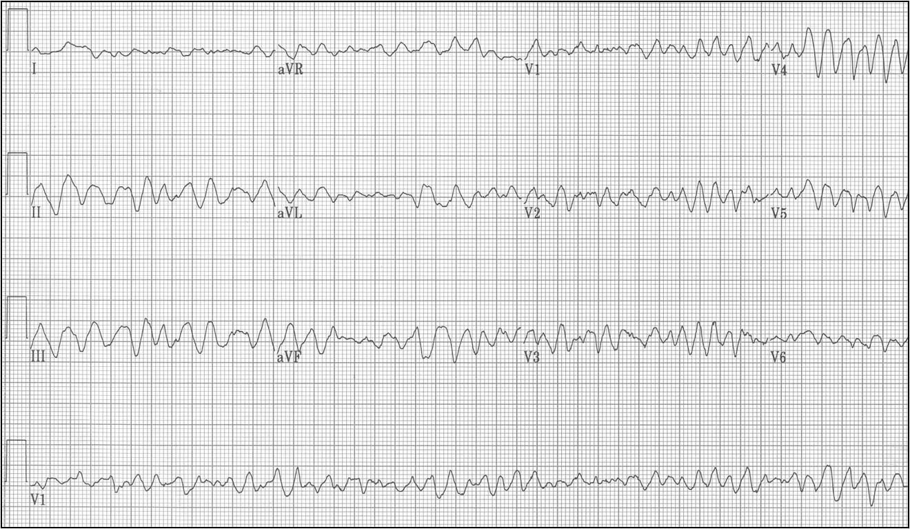 ECG Learning Center - An introduction to clinical electrocardiography