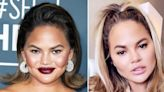Chrissy Teigen Reveals She Underwent Surgery To Remove Fat From Her Cheeks, Says She Has 'No Shame' About It
