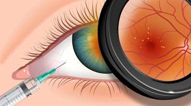 甲狀腺相關眼病臨床診斷中需藉助相關化驗及檢查,病理改變較複雜