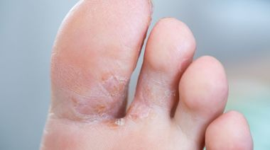 香港腳|運動人士 4招避開足癬 - 香港健康新聞 | 最新健康消息 | 都市健康快訊 - am730