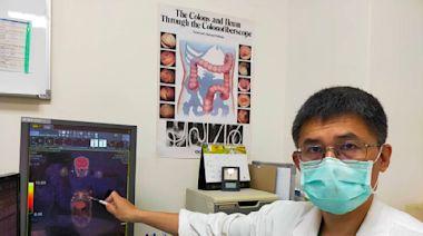 63歲男子胸部不適、食慾低 檢查確診乳癌4期