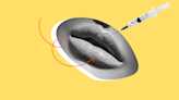 Your Ultimate Guide to Getting Lip Injections for the First Time