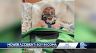 Rock thrown 72 feet from lawnmower puts boy in coma