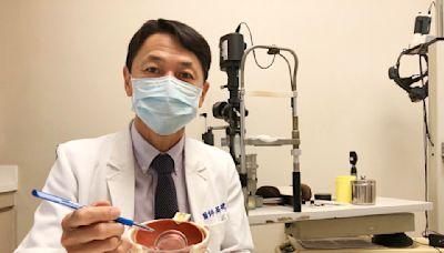 白內障換人工水晶體怎挑選 眼科醫師一張樹狀圖解答