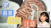 癌症|罕見鼻咽腺樣囊性癌 症狀與鼻咽癌相似 鼻塞耳塞流鼻血勿忽視 | 蘋果日報