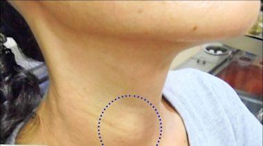 喉嚨卡卡緊緊的 竟是甲狀腺癌 - 即時新聞 - 自由健康網