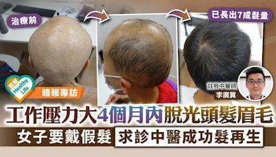 脫髮問題|工作壓力大4個月內脫光頭髮眉毛 女子要戴假髮求診中醫髮再生 - 晴報 - 健康 - 生活健康
