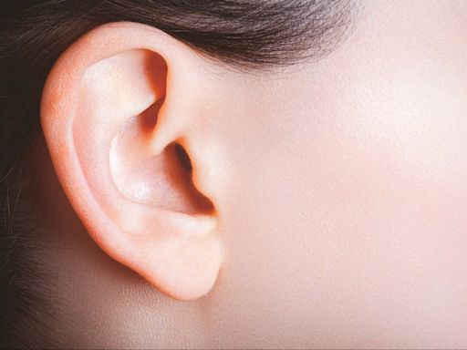'Elf ears' are a new surgery trend in China, say reports