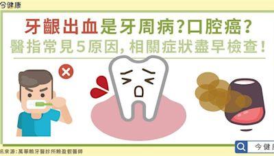 牙齦出血是牙周病?醫指常見5原因相關症狀盡早檢查!